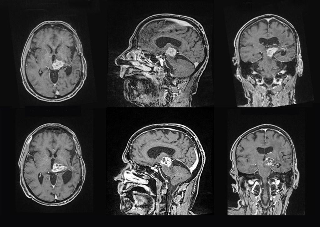 Focused Ultrasound MRI