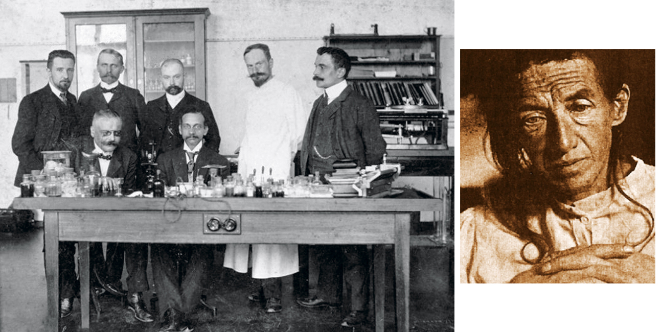 Alois Alzheimer and Coworkers, Auguste D
