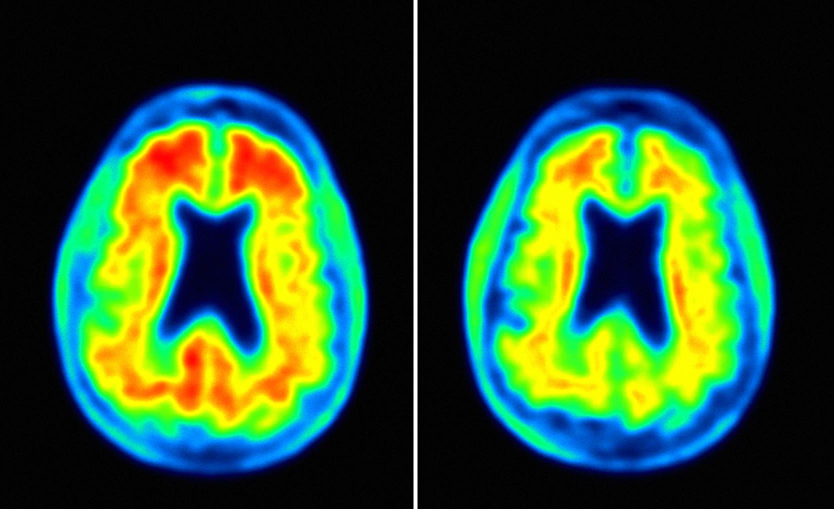 BioGen Alzheimers