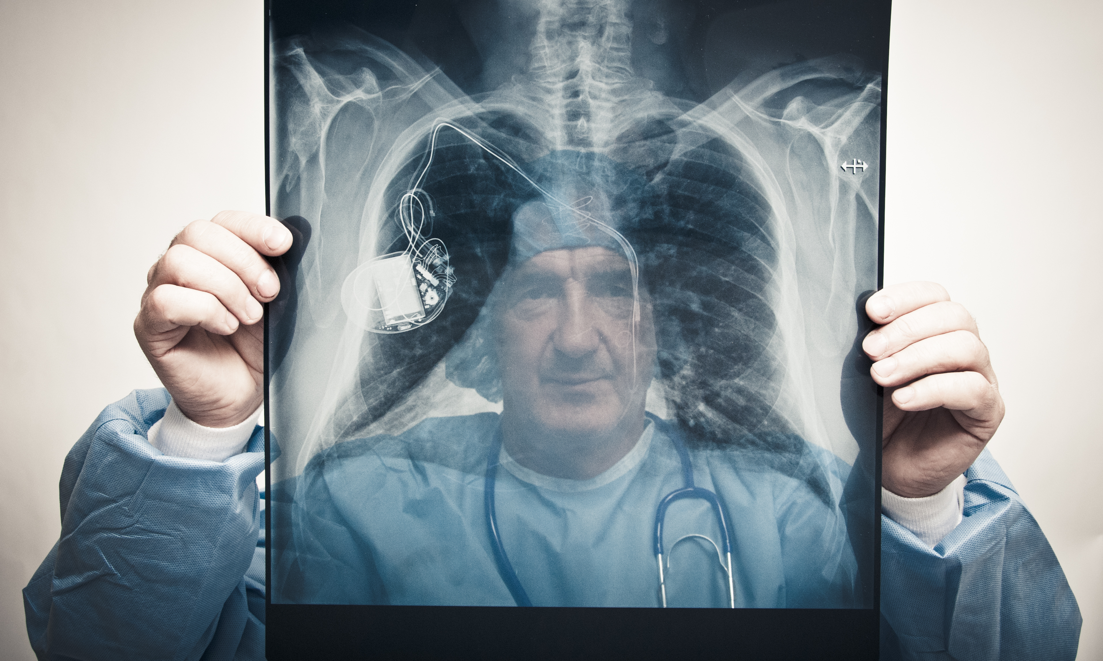 Doctor examining pacemaker on chest x-ray