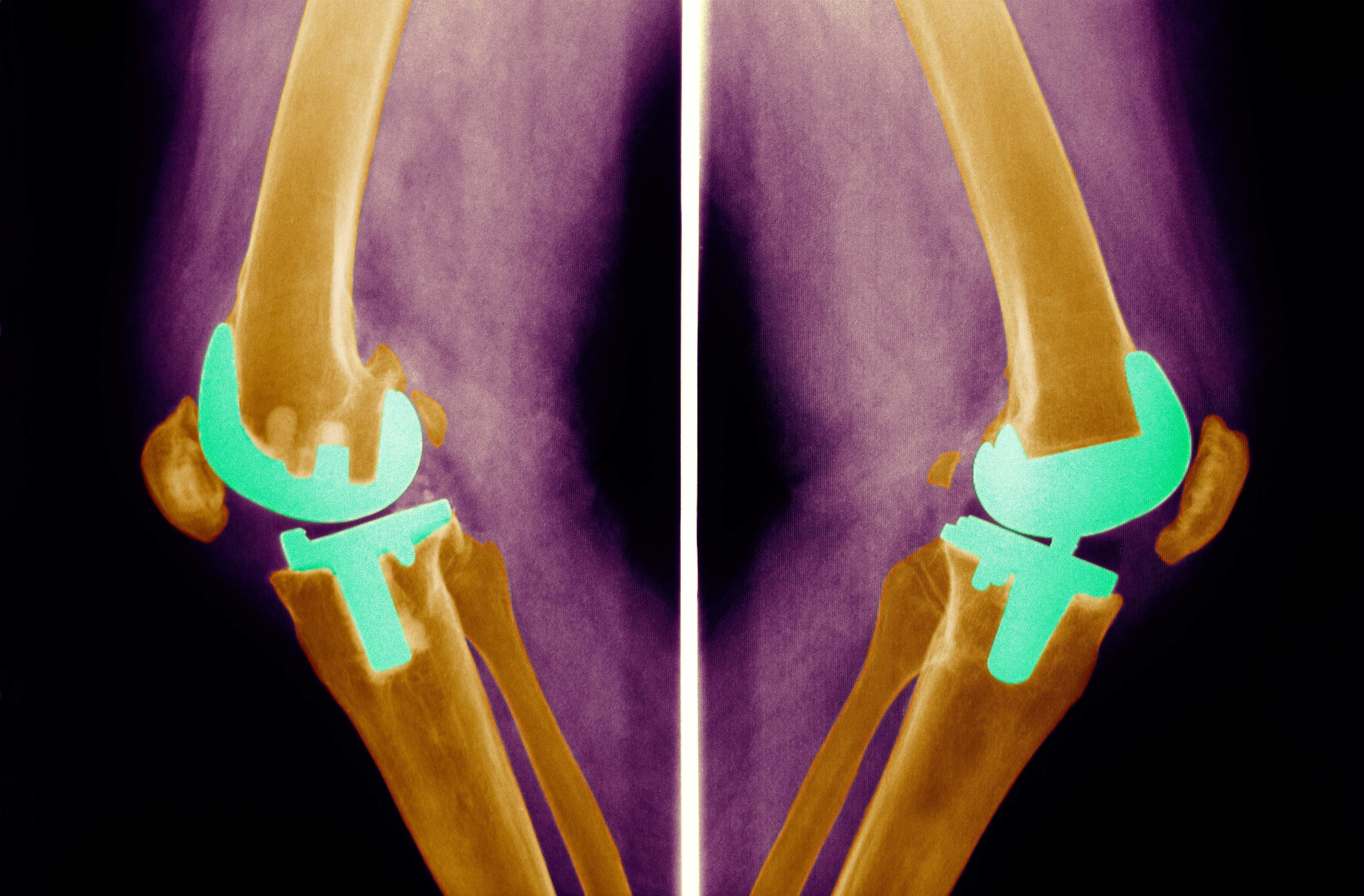 Knee Prosthesis, X-Ray