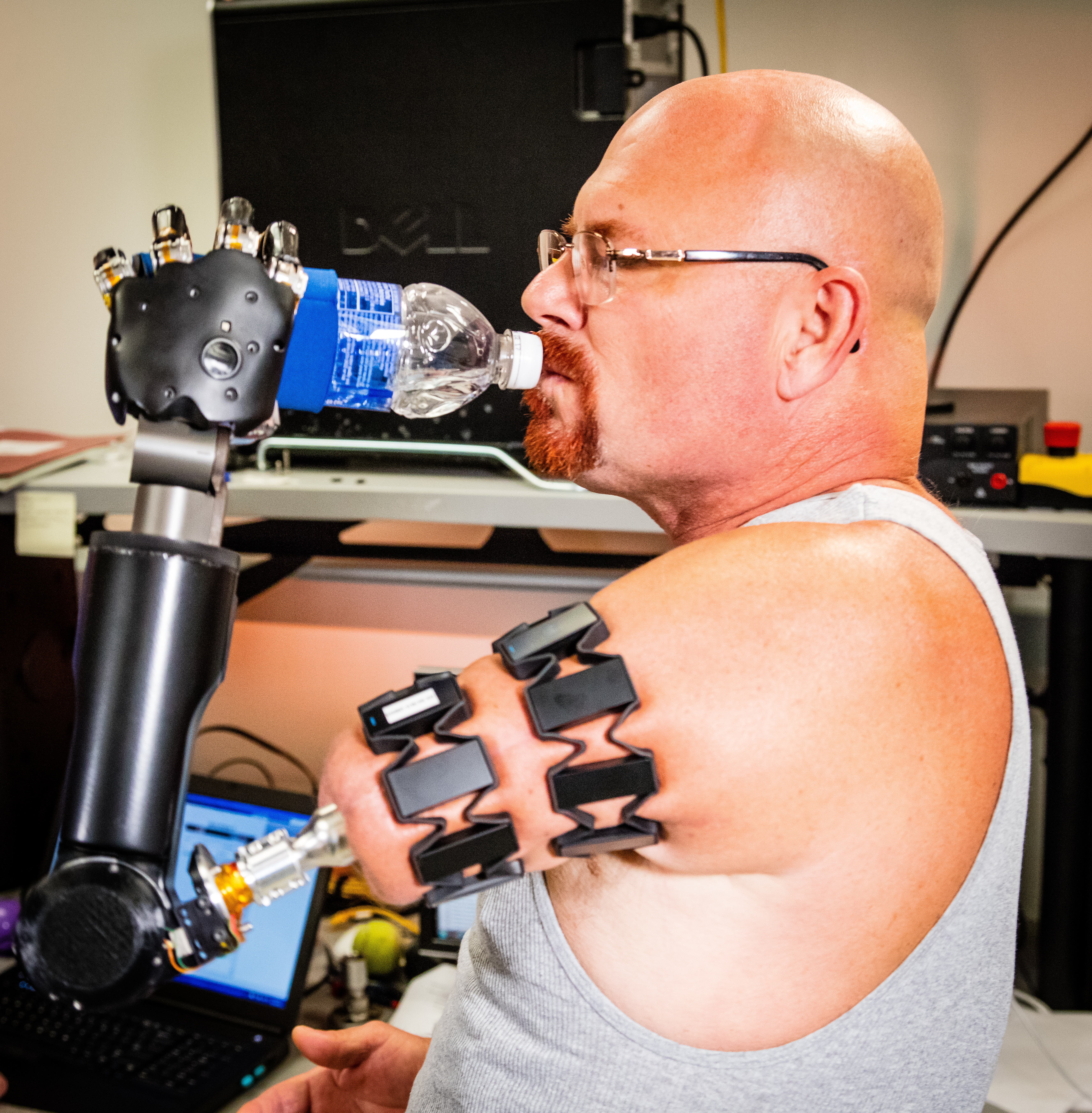 Johnny Metheny with his experimental prosthetic, and the Myo armbands that let him control it.