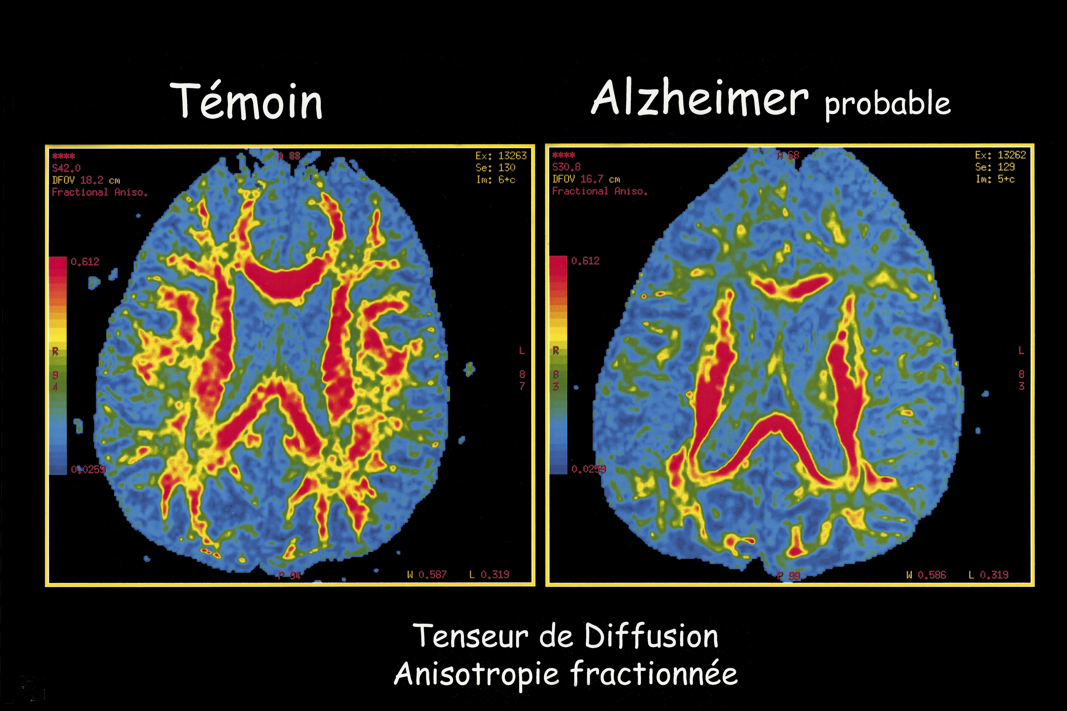 Alzheimer Disease, Mri