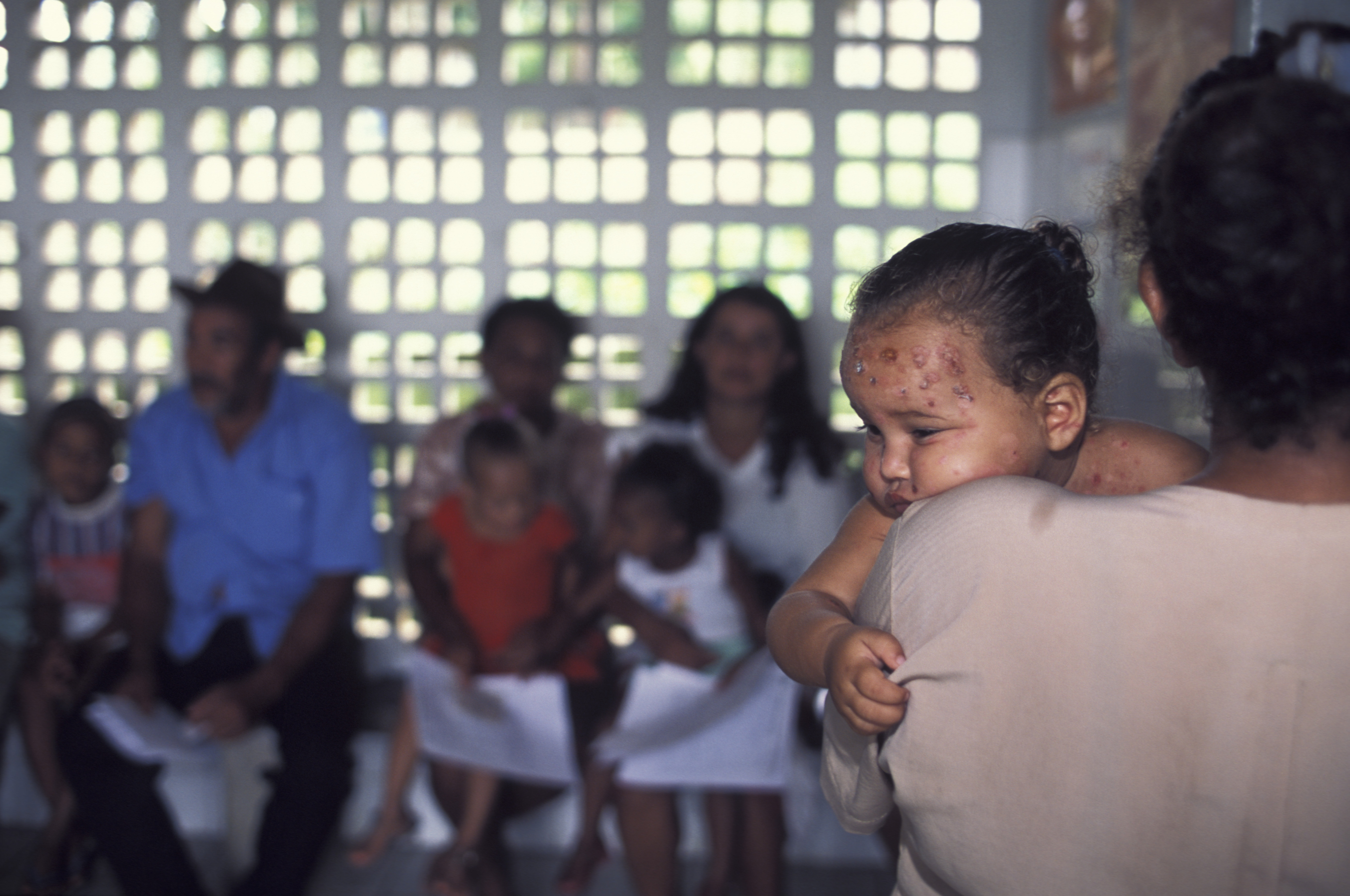 One-year old baby suffering from skin ulcers on face waits