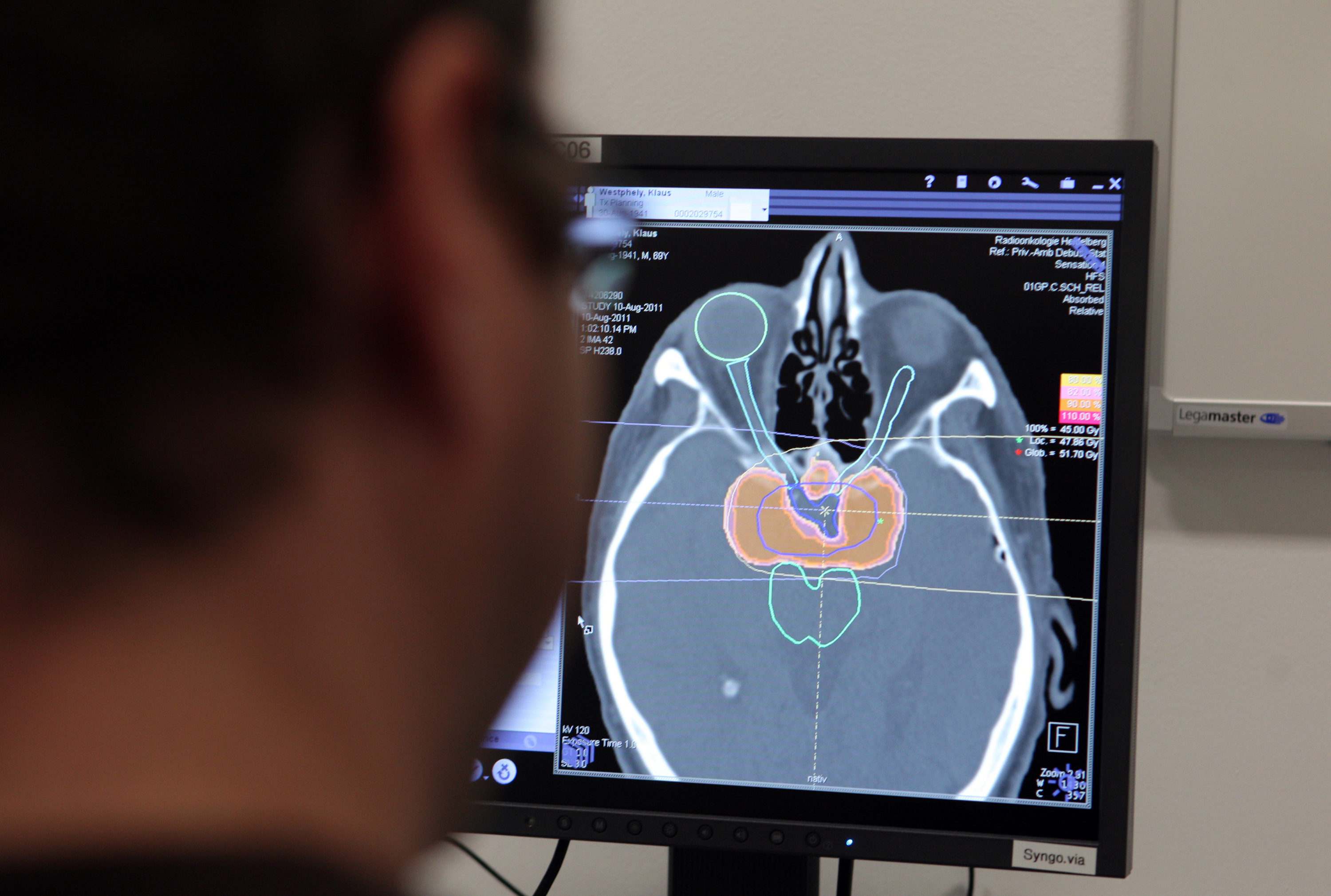 A medical technician monitors a scan of a patient's brain during cancer treatment in Germany.