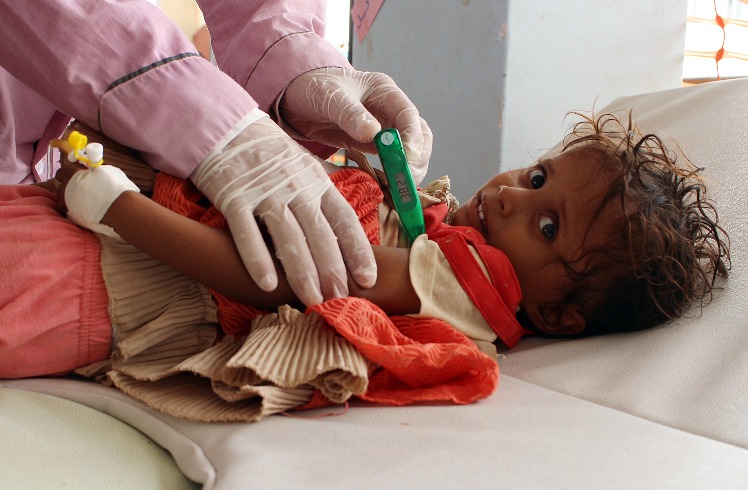 A Yemeni child suspected of being infected with cholera is checked by a doctor at a makeshift hospital operated by Doctors Without Borders (MSF) in the northern district of Abs in Yemen's Hajjah province , on July 16, 2017.