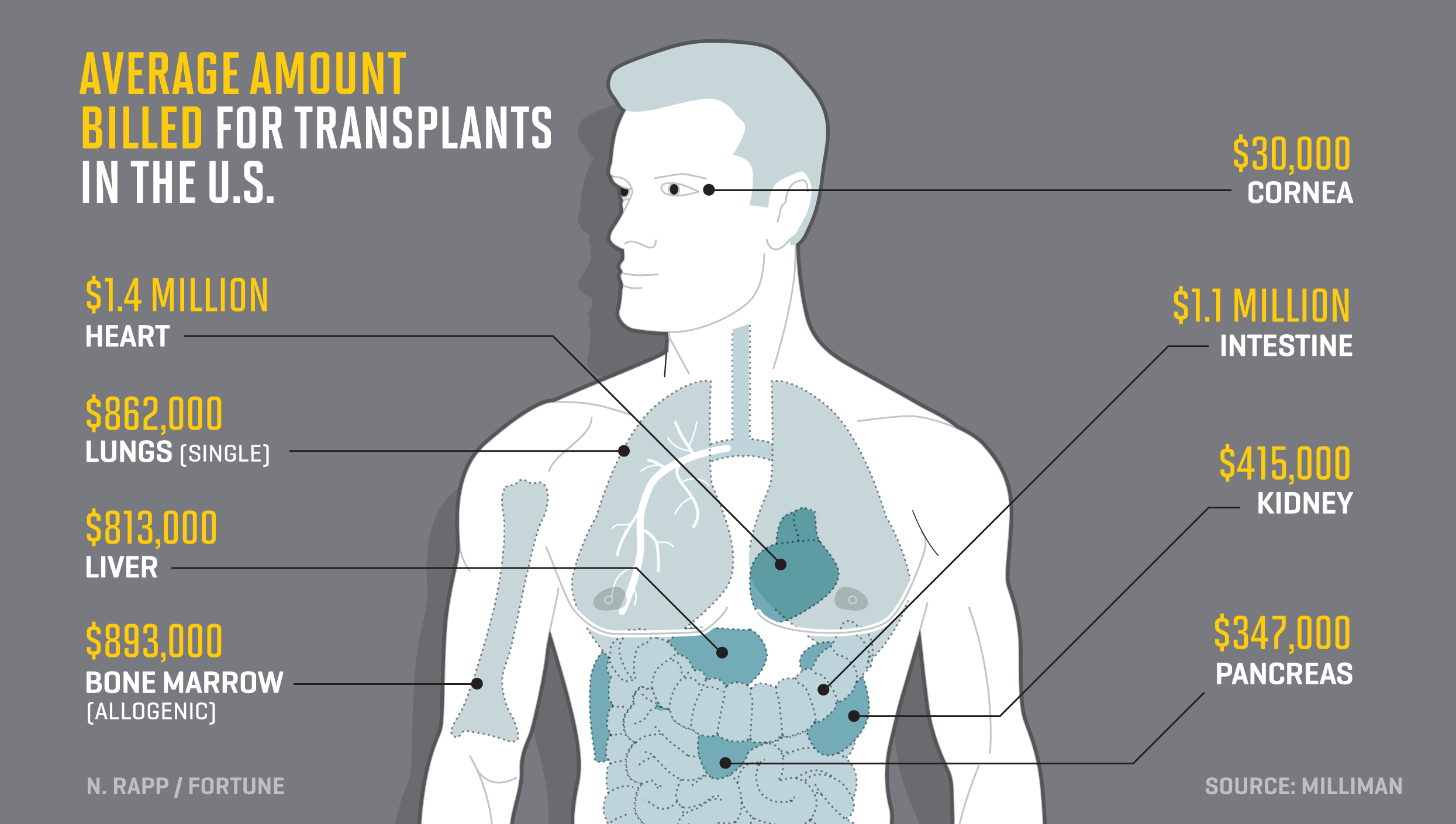 Here's What Every Organ in the Body Would Cost to Transplant | Fortune