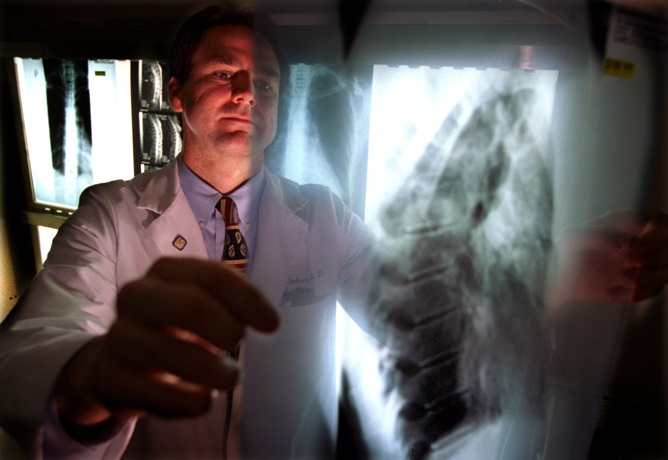A doctor reviews x-rays of a patient suffering from a form of cancer called multiple myeloma.