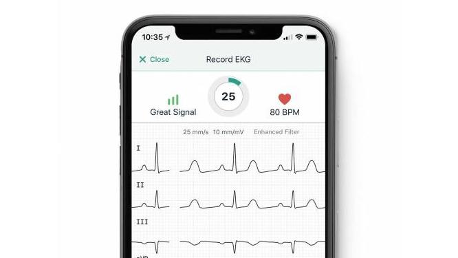AliveCor's KardiaMobile smartphone app.