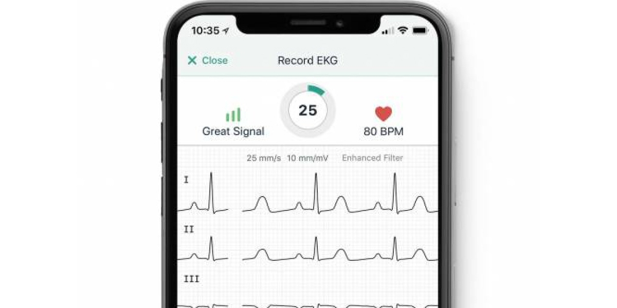 AliveCor's Mobile ECG Shows Promise in Three Studies | Fortune