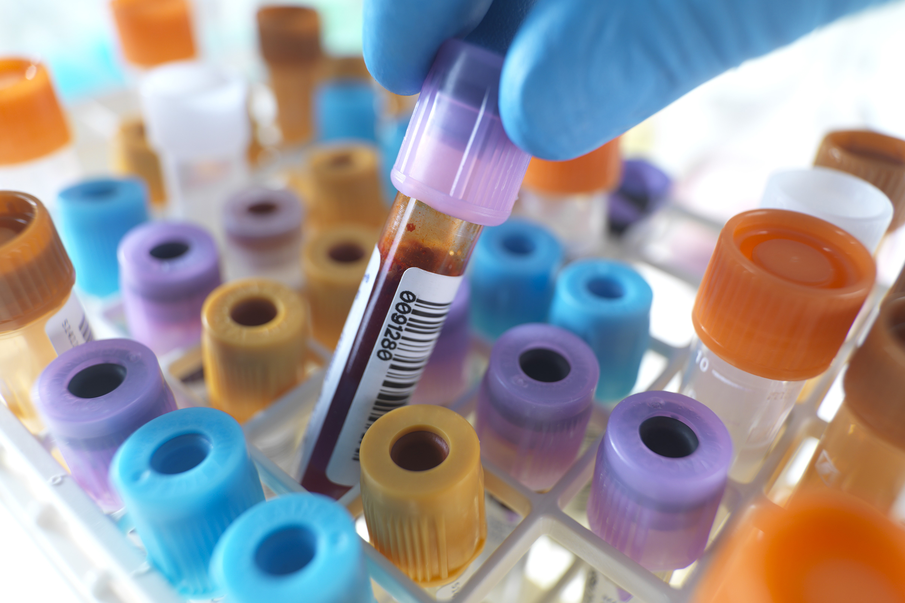 quest diagnostics data breach blood test