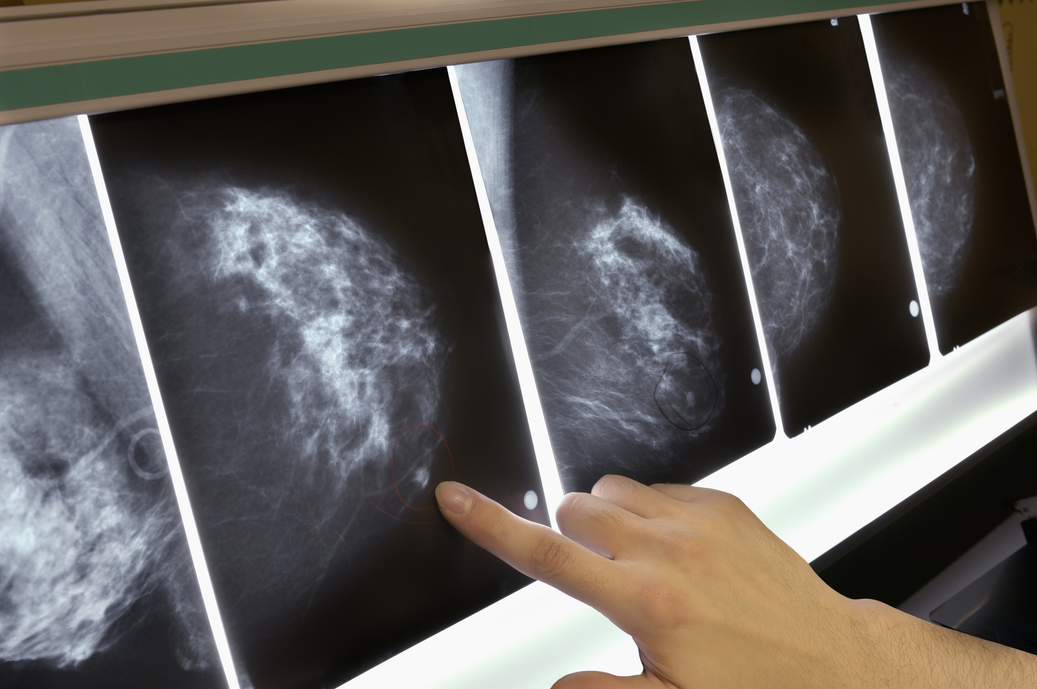 BRCA Gene Breast Cancer Testing USPSTF