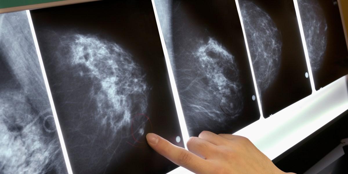 U.S. Panel Says More Women Should Get BRCA Gene Testing for Breast Cancer: Brainstorm Health