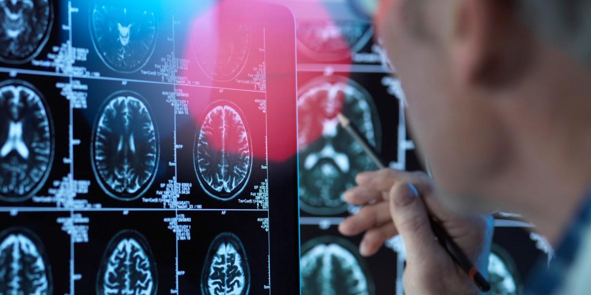 The Broader Implications of Biogen's Divisive Alzheimer's Drug